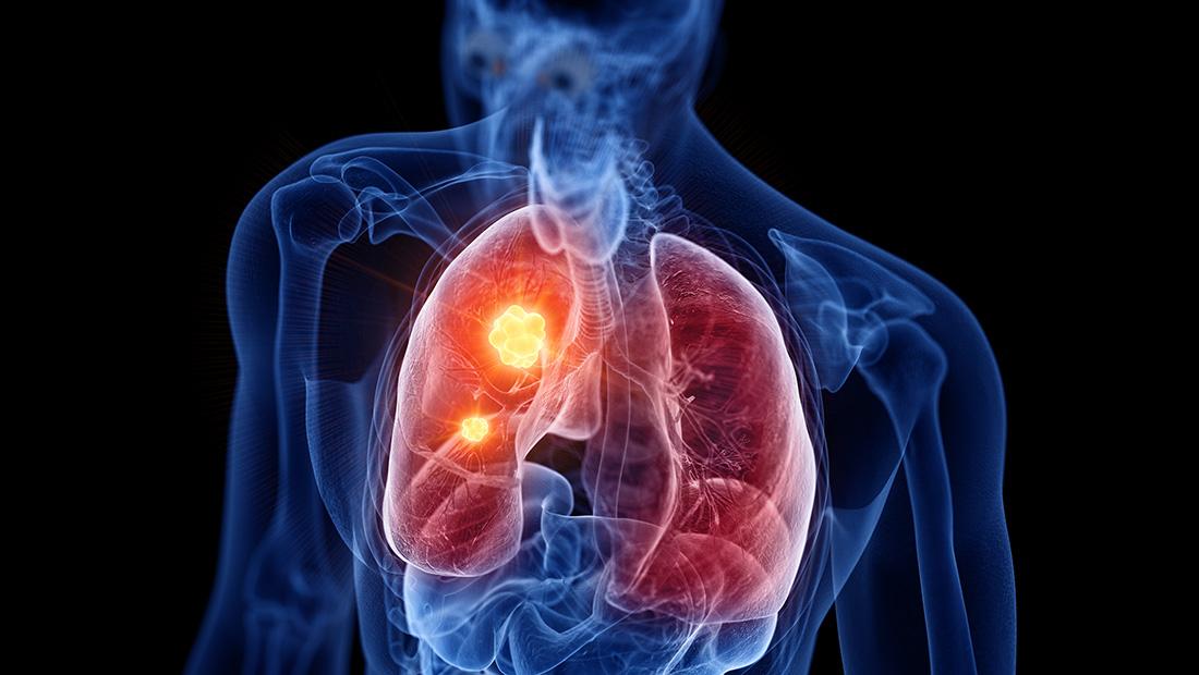 Πρόγραμμα προληπτικού ελέγχου «Πνευμόνων Υγεία»  Από το Metropolitan Hospital και τον Όμιλο HHG