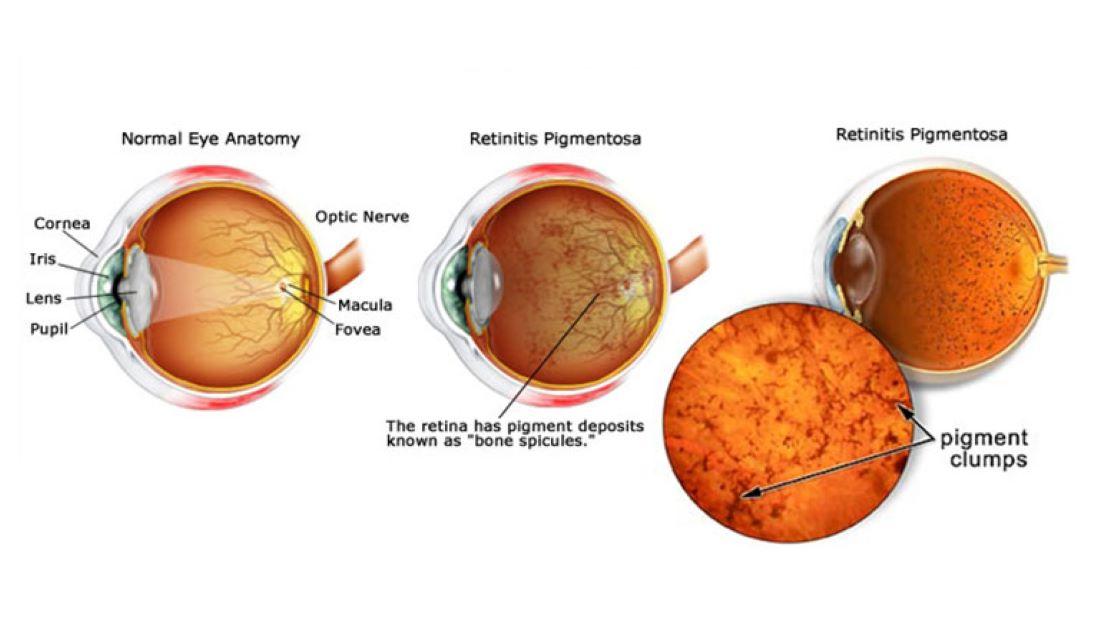 Πρωτοποριακή οπτογενετική θεραπεία