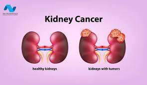 Ο κληρονομικός καρκίνος του νεφρού VHL και ο καρκίνος του νεφρού